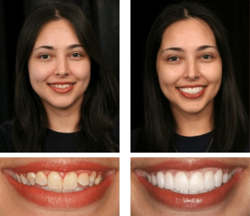 Patient Testimonial Maria | Smile Texas Houston
