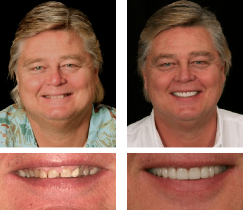 Patient Testimonial Martin | Smile Texas Houston