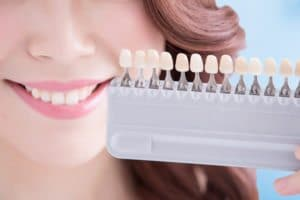 Teeth Whitening Houston Texas | What's to Blame for Yellowing Teeth?